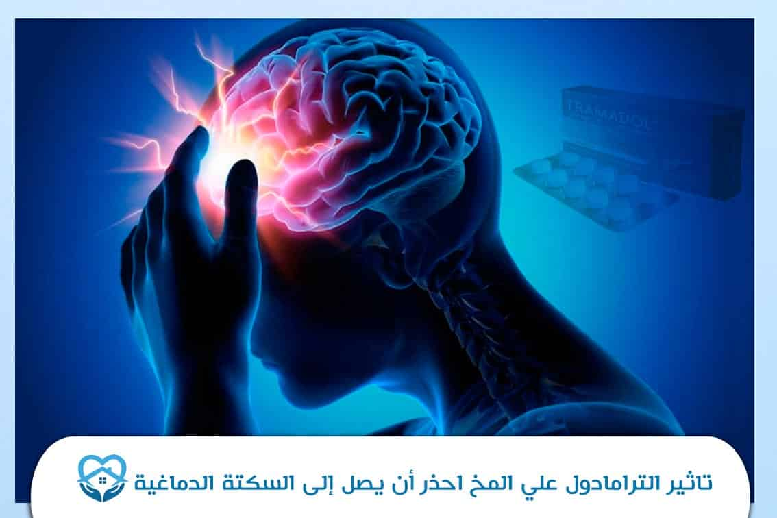 تاثير الترامادول علي المخ احذر أن يصل إلى السكتة الدماغية
